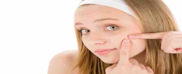 Die richtigen Wirkstoffe für Akne finden