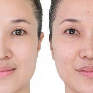 Aknenarben lasern lassen – eine gute Behandlungsmethode?