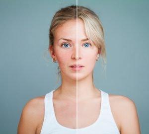 Aknenarben – eine unschöne Folge von Akne