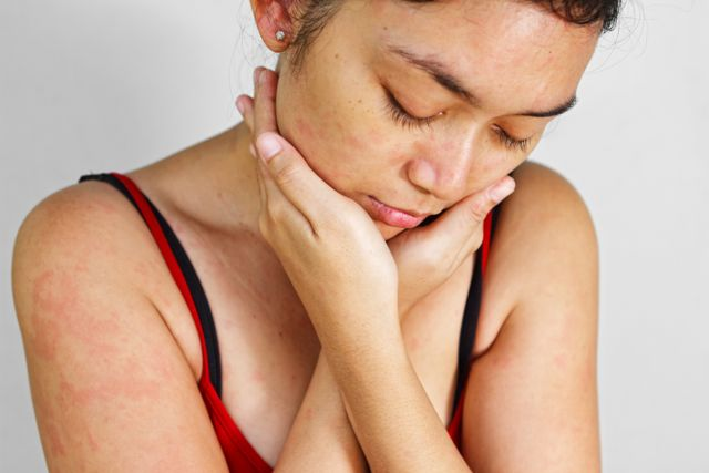 Allergie- Hyposensibilisierung, Prick-Test & Co.