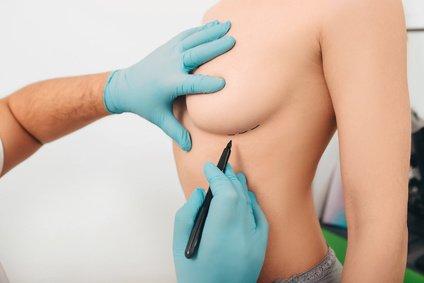 Brust verkleinern für ein angenehmeres Leben