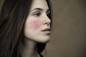 Cetyl Dimethicone Allergie