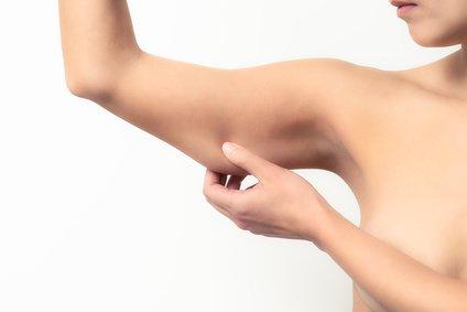 Absaugen des Fettes im Oberarm