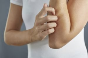Hautkrankheiten – wenn's schuppt, juckt oder brennt