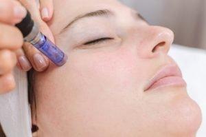Microneedling – die Beauty-Behandlung gegen Dehnungsstreifen und Narben