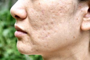 Narben entfernen – damit die Haut wieder glatt wird