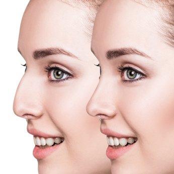 Korrektur an der Nase ohne sichtbare Narben