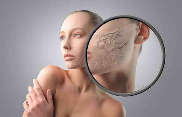 Hilfe bei trockener Haut