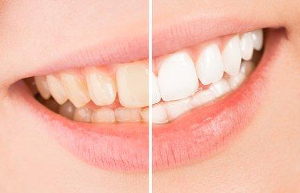 Ein Bleaching macht die Zähne wieder weiß